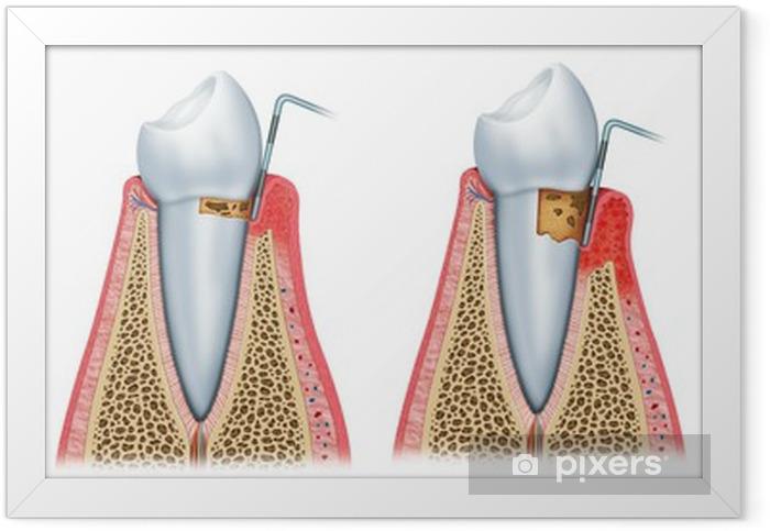 Poster en cadre Séquence de la parodontite - PI-31