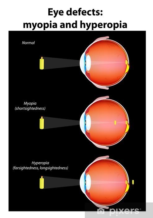 7aa996ae84cd eye defects   myopia and hyperopia Pixerstick Sticker - Health and Medicine