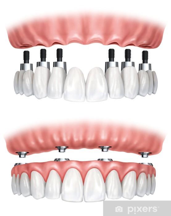 Papier peint vinyle Prothèses dentaires - PI-31