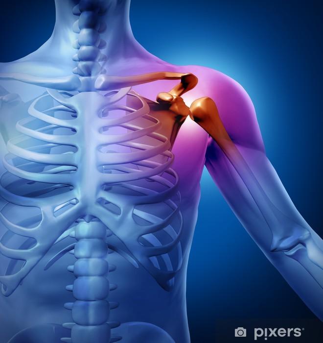 Sticker Douleur à l'épaule de l'homme Pixerstick