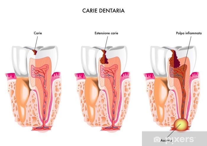 Carie dentaria Vinyl Wall Mural - Health and Medicine