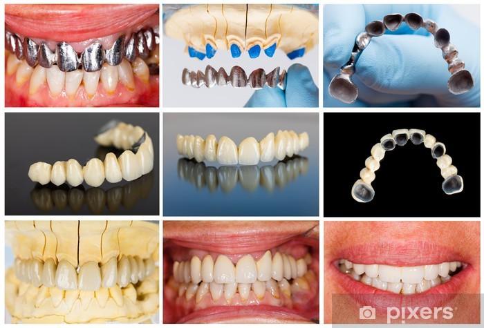 Papier peint vinyle Mesures techniques de bridge dentaire - Santé et médecine