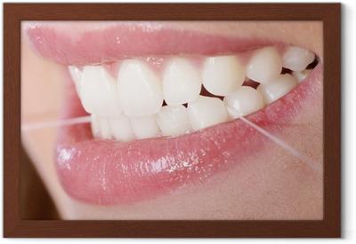 Plakat w ramie Nić dentystyczna