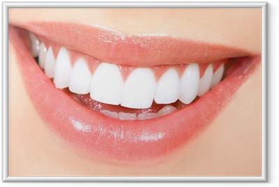 Póster com Moldura Woman teeth